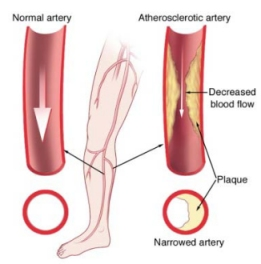 A normal artery is shown on the left with no blockage. The right artery shows how it's been narrowed by plaque (atherosclerosis), causing decreased blood flow, and PAD.