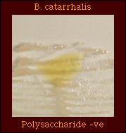 Polysaccharide from Sucrose
