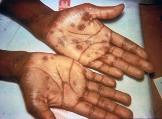 Secondary stage syphilis sores (lesions) on the palms of the hands. Referred to as palmar lesions.