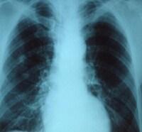 Radiografía del tórax de un paciente con neumonía