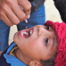 a medic administering polio vaccine drops to a child