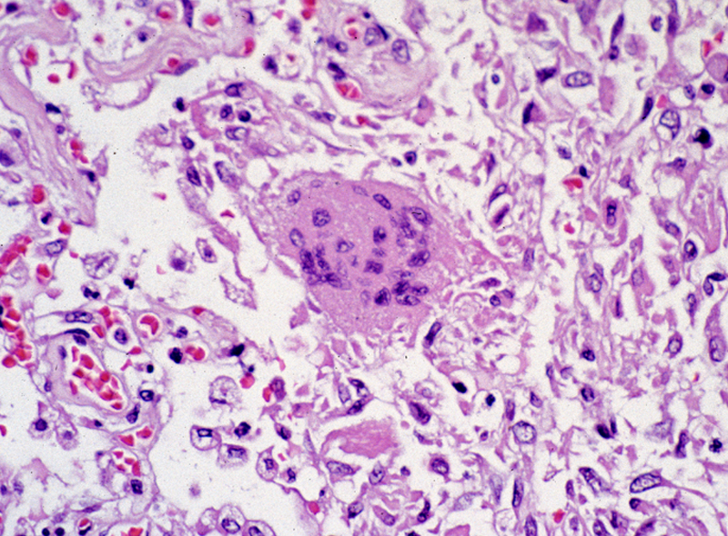 This photomicrograph reveals lung tissue pathology due to SARS.