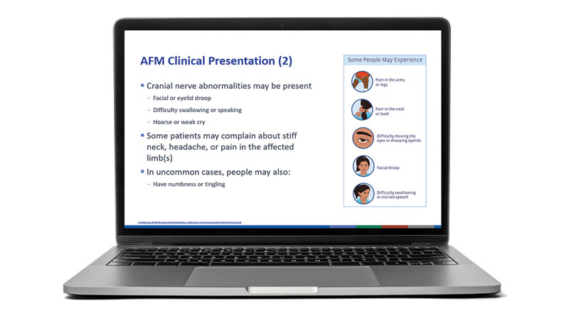 laptop with a slide from CDC's AFM presentation