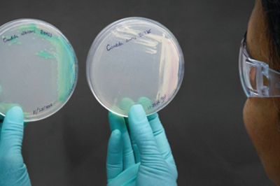 A lab scientist hold two closed petri dishes with strains of candida auris