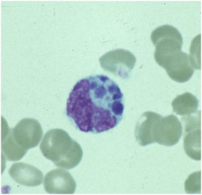 A granulocyte on a peripheral blood smear.