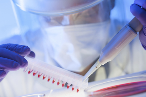 what is a cdc lab test