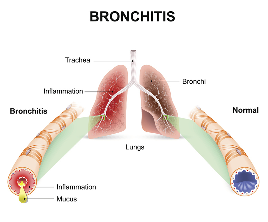 Bronchitis Community Antibiotic Use Cdc