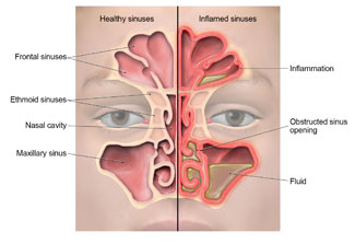 Anatomy of the sinuses, showing where inflammation occurs and fluid builds up during a sinus infection.