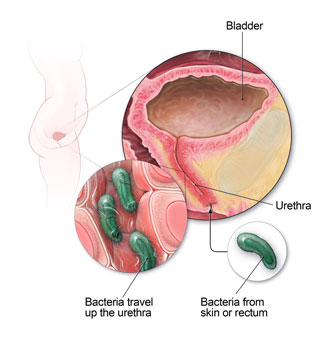 Anatomy of the urinary tract, showing how bacteria can cause an infection.