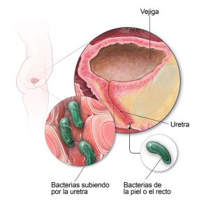 Diagrama de vías urinarias femeninas infectadas por bacterias.