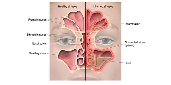 Sinus Infection (Sinusitis) | Antibiotic Use | CDC