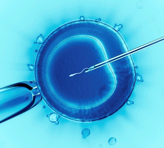 Image of Intracytoplasmic sperm injection (ICSI) technique used during in vitro fertilization (IVF)