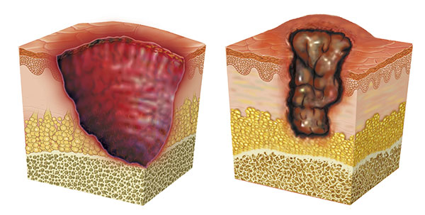 Illustration of skin section with ulcer.