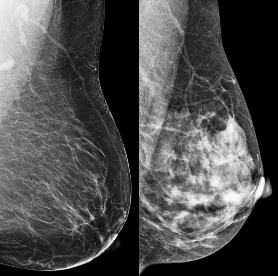 Two mammograms