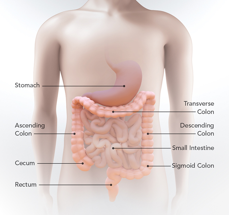 What Is Colorectal Cancer Cdc