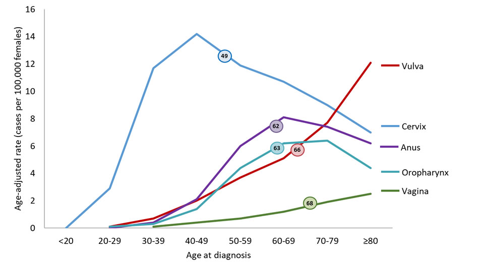 Line chart showing the median age at diagnosis for HPV-associated cancers among women. 49 years for HPV-associated cervical cancer, 67 for HPV-associated vaginal cancer, 66 for HPV-associated vulvar cancer, 62 for HPV-associated anal cancer, and 62 for HPV-associated oropharyngeal cancers.