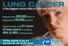 Lung cancer is the biggest cancer killer in both men and women. Every year, about 200,000 people are diagnosed and 150,000 people die. Cigarette smoking is the number 1 cause of lung cancer. It is linked to 80 to 90 percent of all lung cancers. Quitting smoking at any age can lower the risk of lung cancer.