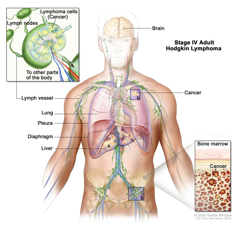 Diagram showing stage four adult Hodgkin lymphoma