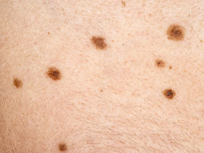 What Are The Symptoms Of Skin Cancer Cdc