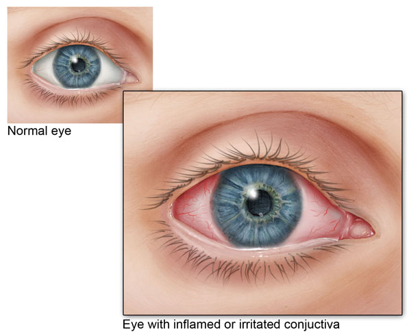 conjunctivitis | pink eye | signs and symptoms | cdc, Skeleton
