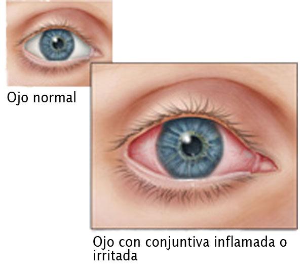 infecciones oculares que parecen ojo rosado