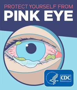 Protect yourself from pink eye.