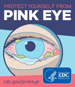 Help protect yourself from getting and spreading Pink Eye (conjunctivitis)