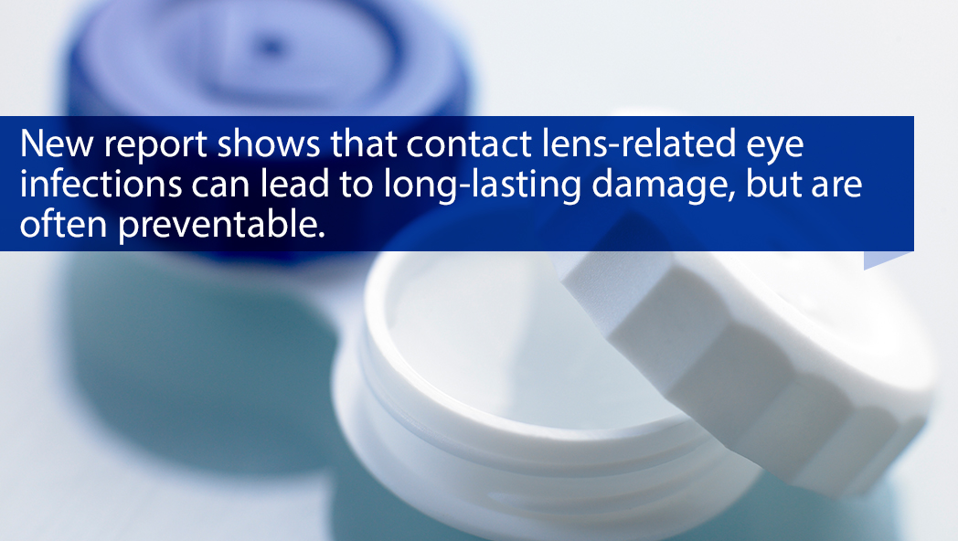 New report shows that contact lens-related eye infection can lead to long-lasting damage, but are often preventable.