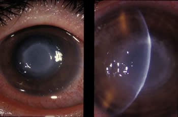 Eye infection from Acanthamoeba causing inflammation of the stroma and lens cloudiness