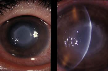 Basics Of Parasitic Amebic Keratitis Contact Lenses Cdc