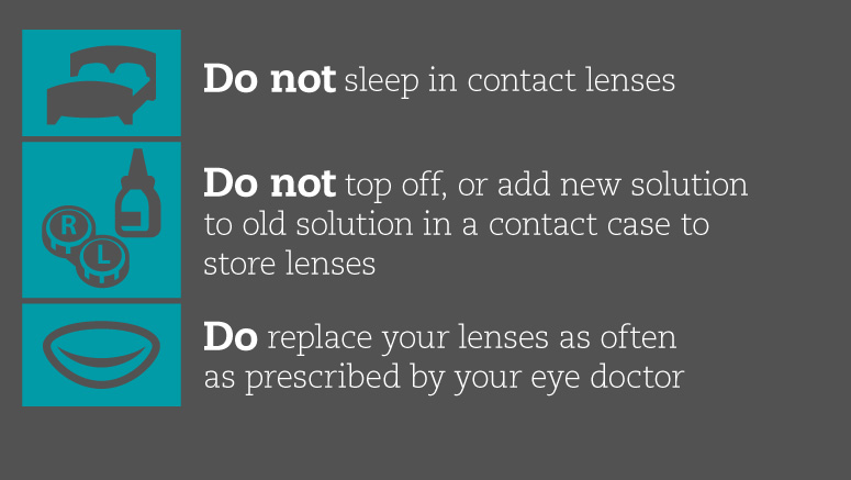 Do not sleep in contact lenses. Do not top off, or add new solution to old solution in a contact case to store lenses. Do replace your lenses as often as prescribed by your eye doctor.