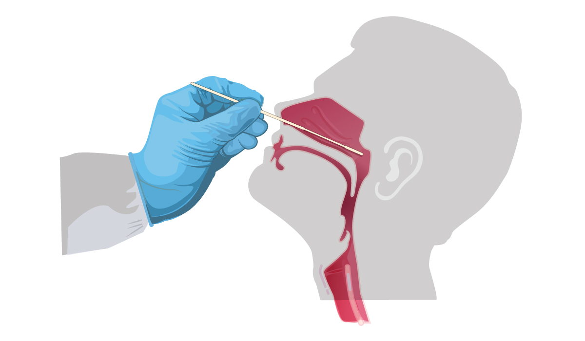 Illustration: swab inserted into nasal cavity