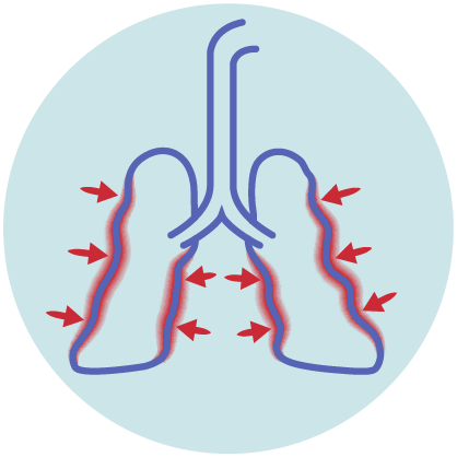 image depicting lungs with restricted air representing shortness of breath