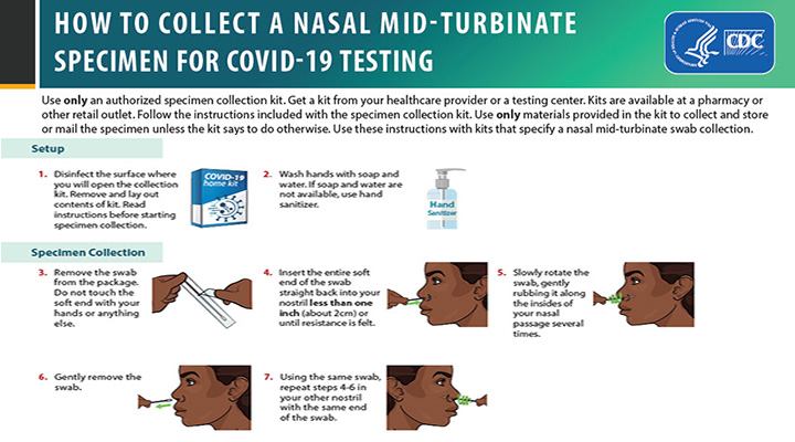 How to Collect a Nasal Mid-Turbinate Swab Sample for COVID-19 Testing