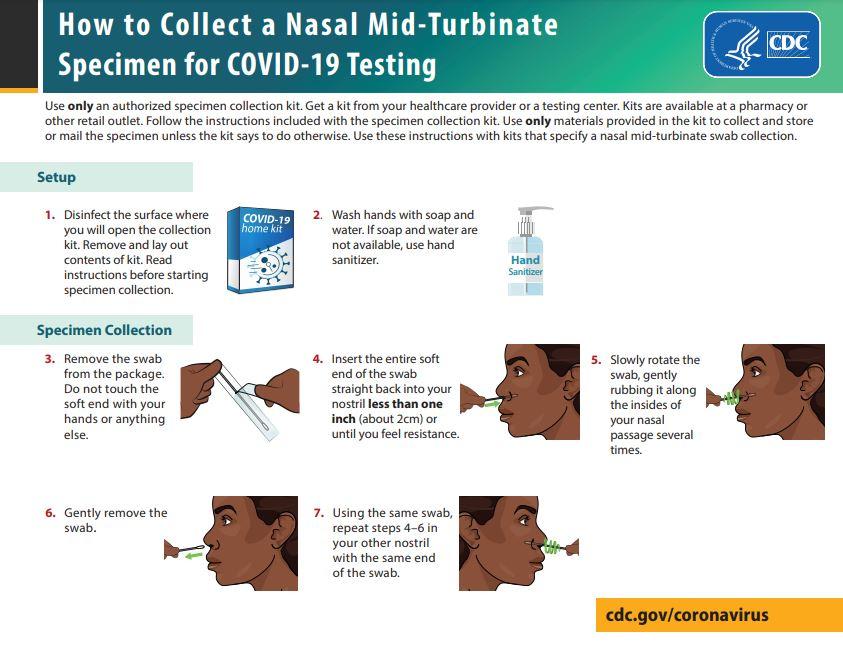 COVID-19 검사를 위한중비개골 면봉 검체 채취법