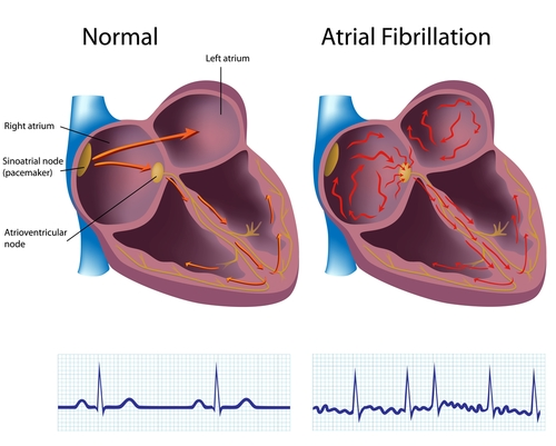 In the normal heart, the electrical activity proceeds in an organized manner, going from the atrium and into the ventricles. In a heart with atrial fibrillation, the electrical activity occurs in an unorganized manner rather than being sequential. The irregular line in the electrocardiogram on the right reflects the disorganized electrical activity producing the fine (fibrillating) wavy lines.