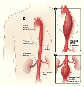 Aortic Aneurysm Fact Sheet|Data & Statistics|DHDSP|CDC