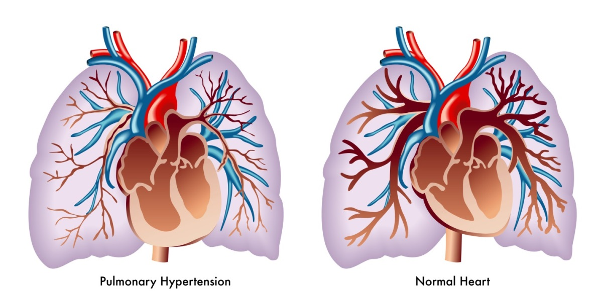 Picture on the left shows the heart, lungs, and pulmonary blood vessels with a narrowed pulmonary artery leading from the heart to the lungs and an enlarged right ventricle. These changes occur in pulmonary hypetension. The picture on the right shows a normal heart, lungs, and pulmonary blood vessels without any narrowed blood vessels.