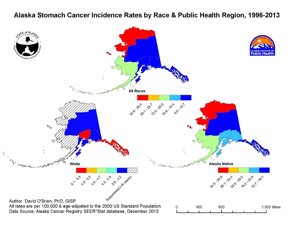 GIS Exchange|Map Details - Stomach Cancer Incidence Rates by ... on current cancer statistics map, abortion rate map, skin cancer map, obesity rate map, cancer incidence world map, us cancer map, death rate map, unemployment rate map, cancer death map, tuberculosis rate map,