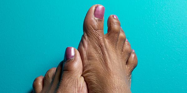 Diabetes And Your Feet Diabetes Cdc