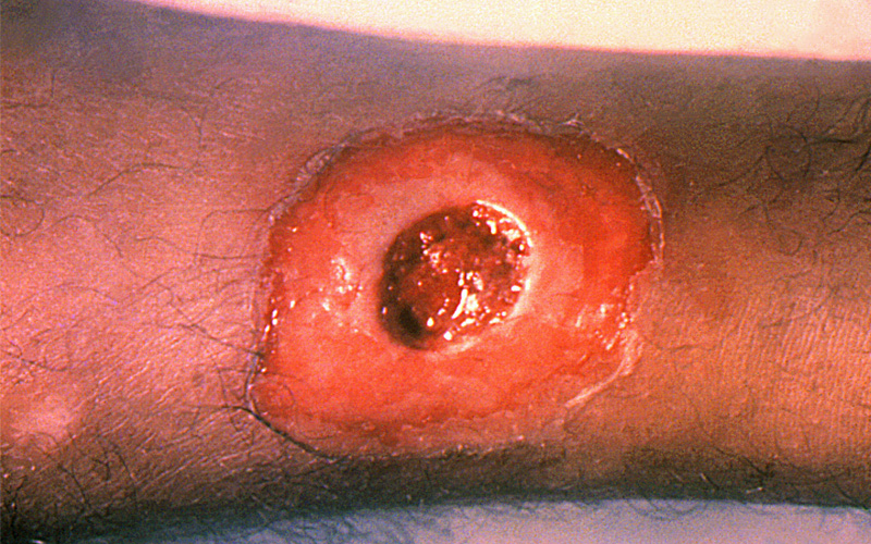 A diphtheria skin lesion on the leg
