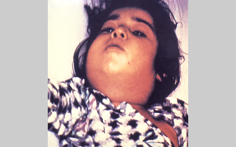 "Child with diphtheria showing a characteristic swollen neck, sometimes referred to as ""bull neck"""