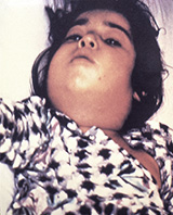 Photo of child with swollen neck due to diphtheria infection