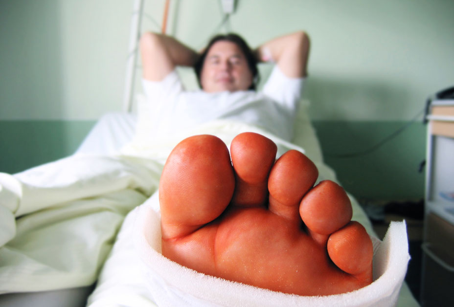 Man in hospital with swollen foot