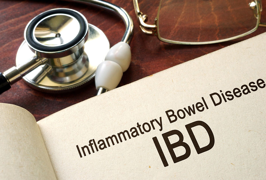 Chart that says Inflammatory Bowel Disease