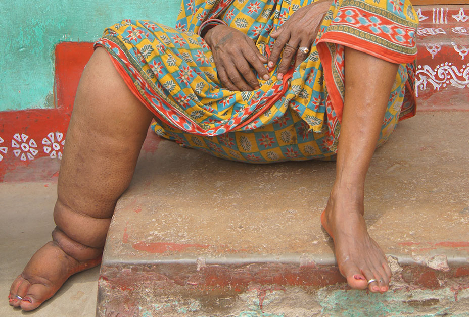 Photo of older woman's swollen feet