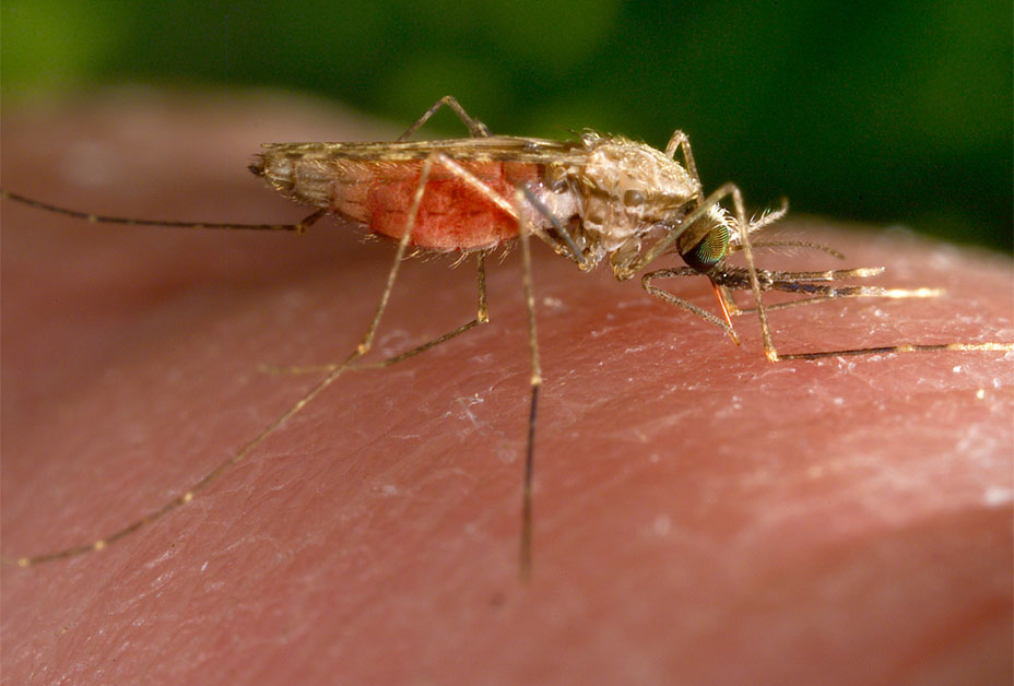 Photo of swollen feet