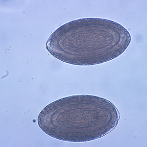 Figure A: Eggs of <em>M. hirudinaceous</em> in an unstained wet mount of stool.
