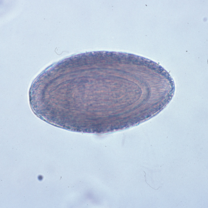 Figure B: Egg of <em>M. hirudinaceous</em> in an unstained wet mount of stool.
