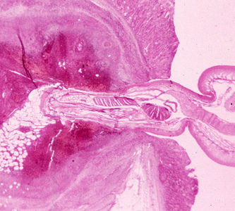 Figure D: Cross-section of the intestine of a pig, stained with H&E, showing the anterior end of an adult <em>Macracanthorhynchus hirudinaceous</em> embedded within the intestinal wall.